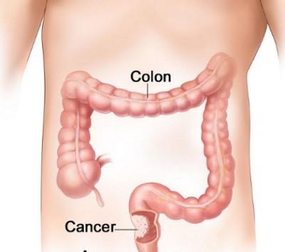 tumore colon