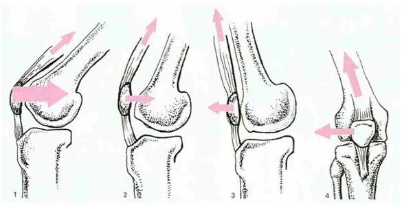 rotula e femore