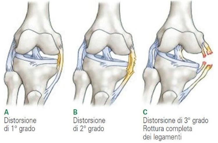 distorsioni ginocchio